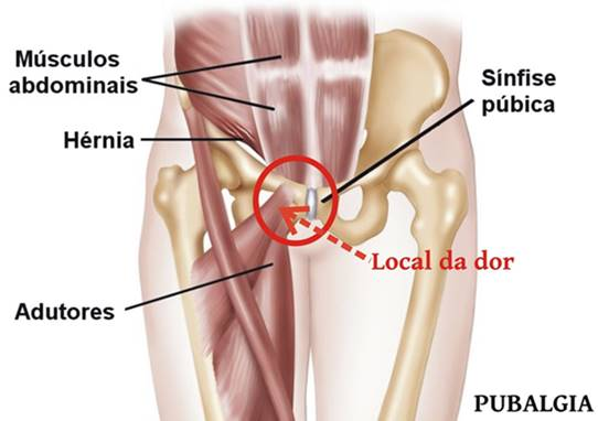 Pubalgia atlética (dolor en ingle): Diagnóstico y evidencia | Atopedegym