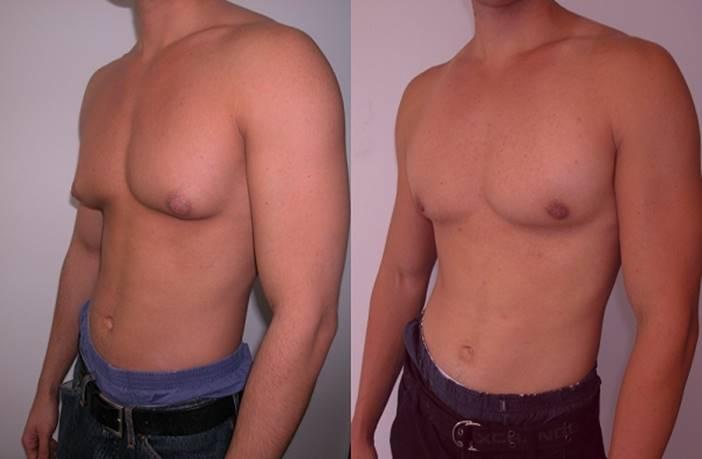 Quitar grasa pectoral