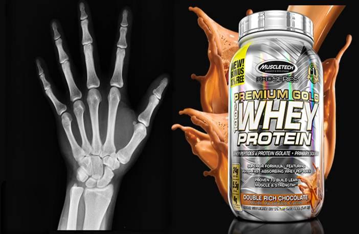 Proteína para huesos