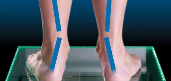 sobrepronación del pie