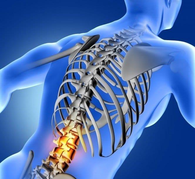 Curvatura de la columna vertebral