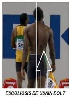 Usain Bolt con escoliosis