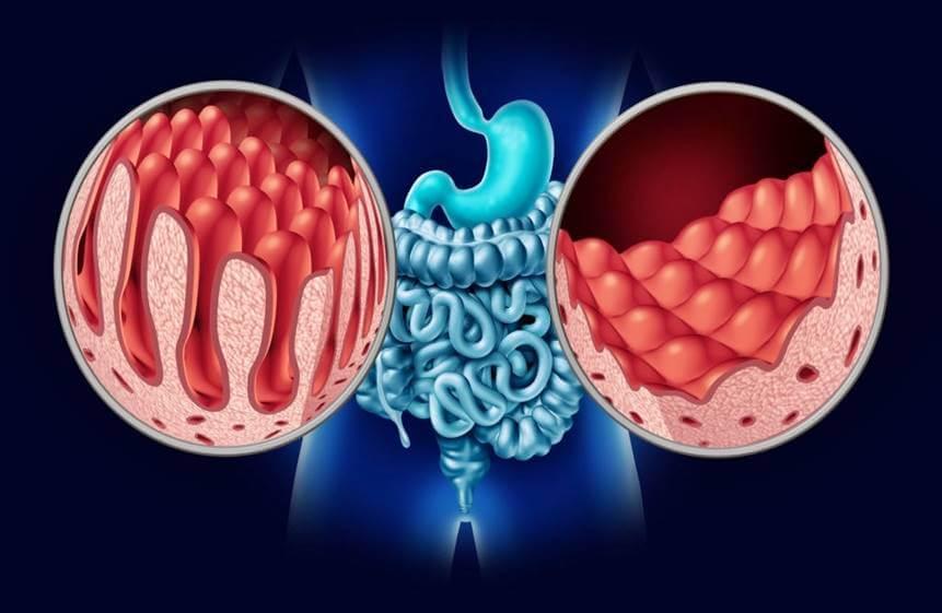 Enfermedad celiaca - Dietas de celíacos